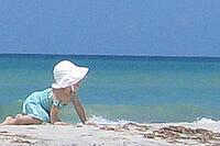 treating sunburn in kids